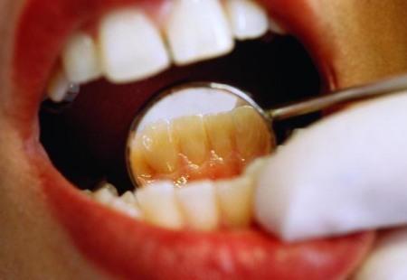 Лечение в стоматологической клинике